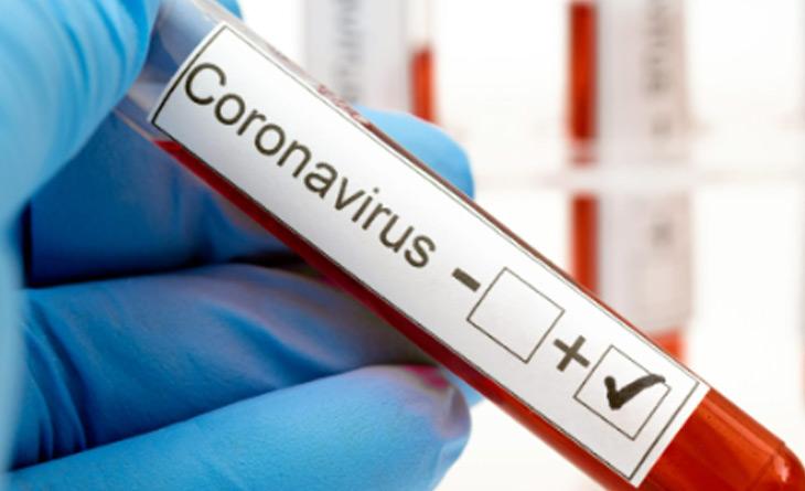 Acurácia dos testes comerciais para COVID-19 disponíveis no Brasil