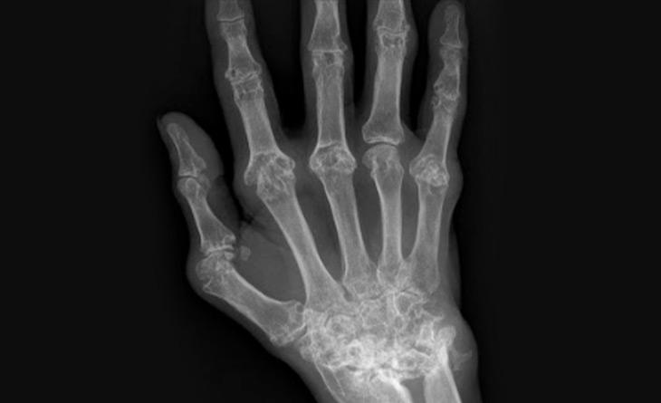 Sinovite detectada pela escala de cinza na ultrassonografia articular prediz o desenvolvimento de erosões nos próximos três anos em pacientes com artrite reumatoide