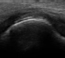 Ultrassonografia no diagnóstico da gota – Valor dos achados patológicos definidos pelo OMERACT